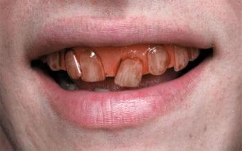 Rotten Goblin SFX Veneer Zähne