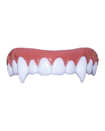 Nightslayer Dental FX Veneers