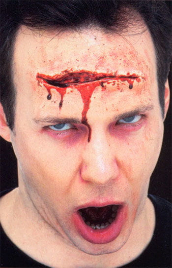 Big skin laceration