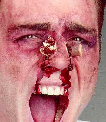 Nasenbruch Wunde