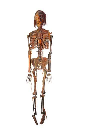Mumifiziertes Kunststoff Skelett lebensgroß
