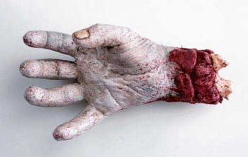 SAW Leichenhand