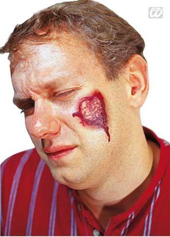 Tattoo pus wound 3