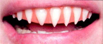 Shark Veneer Teeth Pro