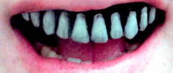 Skeleton Veneer Teeth Pro