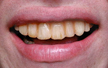 Gammel Veneer Zähne