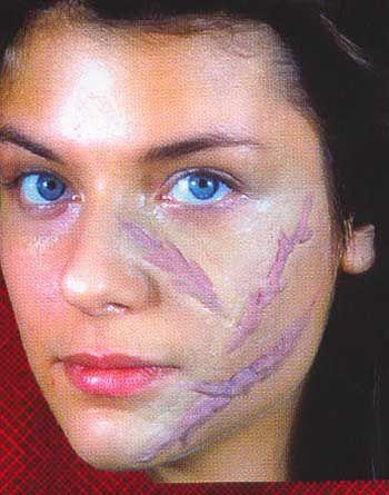 Acid scars Set