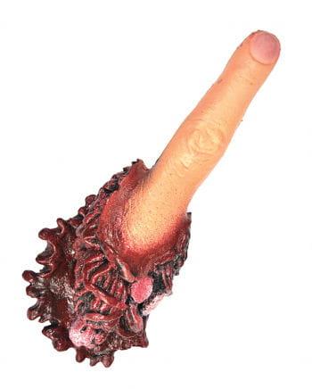 Abgerissener  Zeigefinger