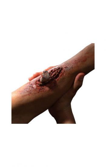 Knochenbruch Verletzung