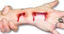 Bio SFX artery wound